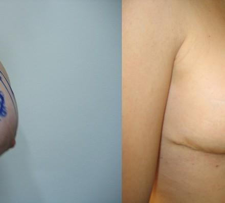 Μείωση μαστού