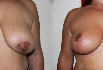 Ανόρθωση μαστού