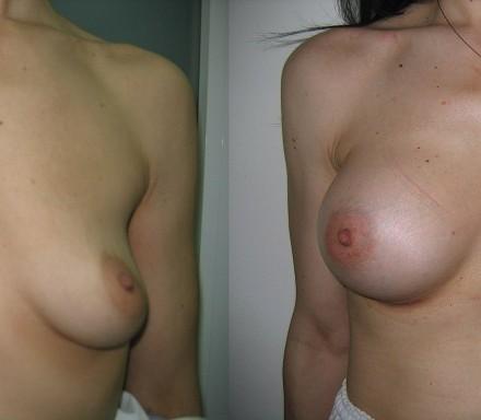 Αυξητική μαστού